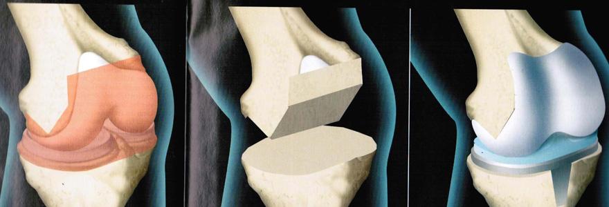les prothèses articulaires